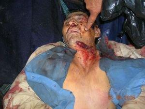 Peruvian torture victim